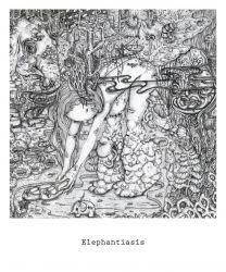Elephantiasis